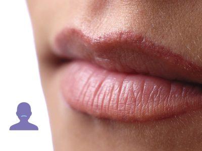 labio superior de una mujer